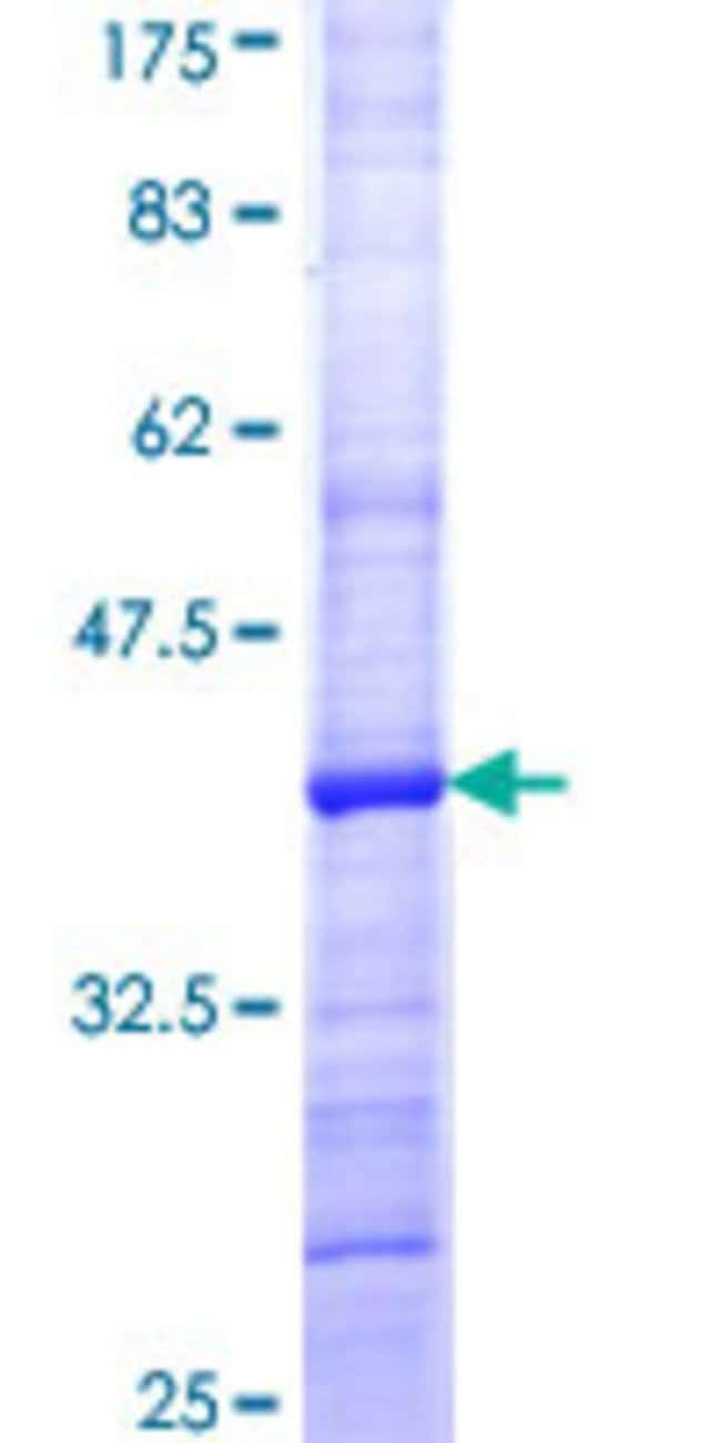 Abnova™Human HGF Partial ORF (NP_000592, 619 a.a. - 728 a.a.) Recombinant Protein with GST-tag at N-terminal 10μg Abnova™Human HGF Partial ORF (NP_000592, 619 a.a. - 728 a.a.) Recombinant Protein with GST-tag at N-terminal
