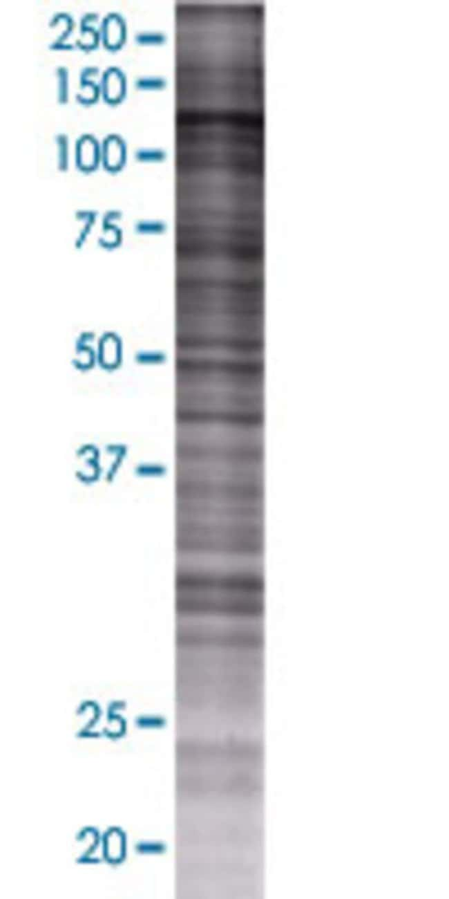 Abnova HIP1 293T Cell Transient Overexpression Lysate (Denatured) 100µL:Life
