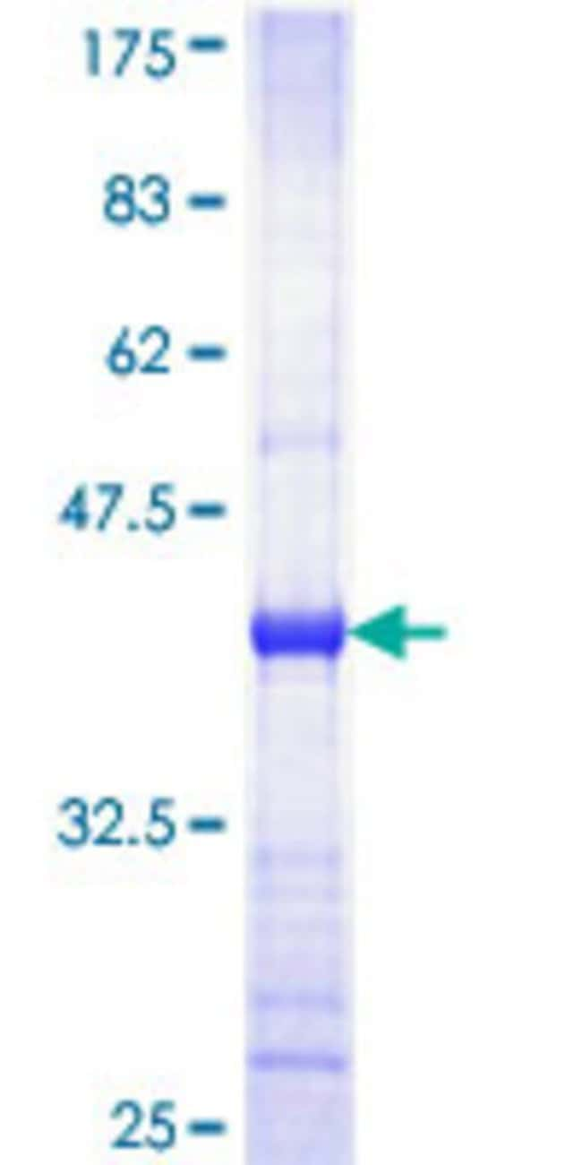 Abnova Human HK1 Partial ORF (NP_277031, 101 a.a. - 200 a.a.) Recombinant
