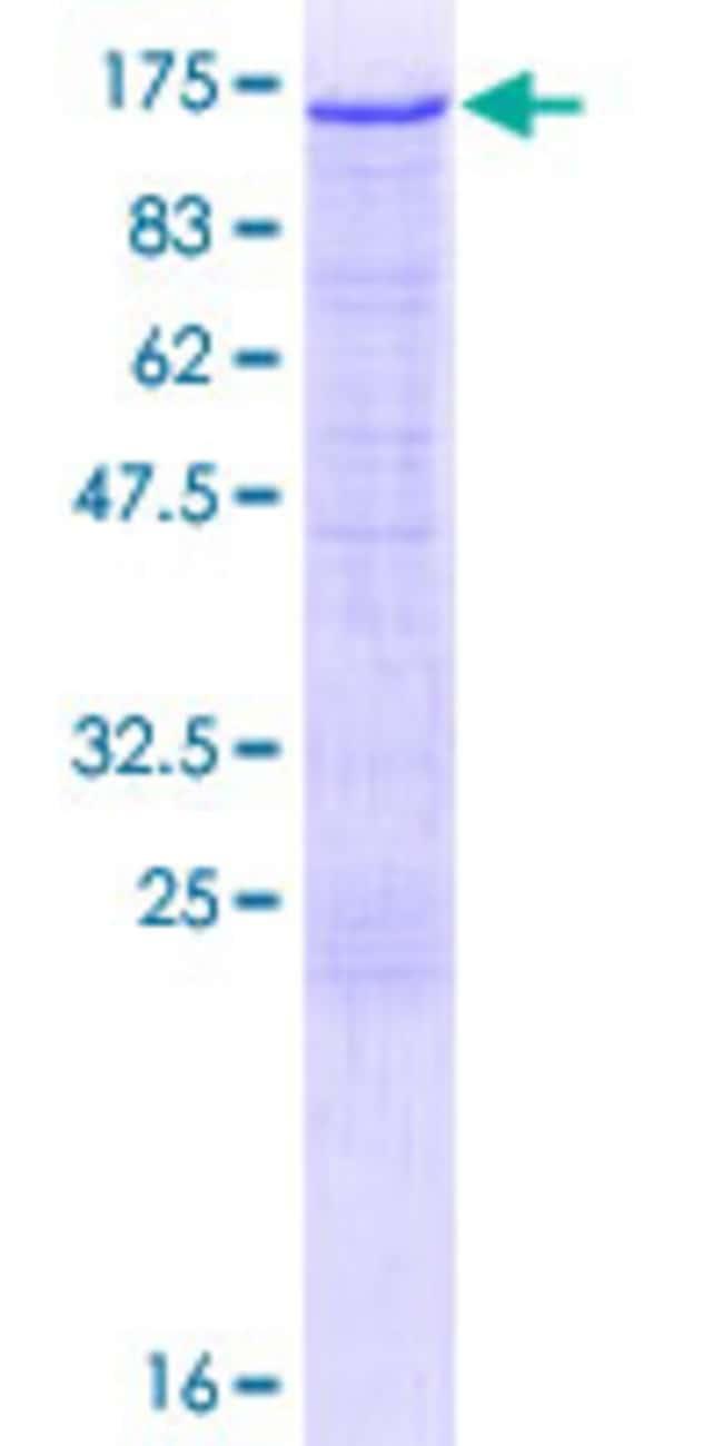 Abnova Human HK2 Full-length ORF (NP_000180.2, 1 a.a. - 917 a.a.) Recombinant