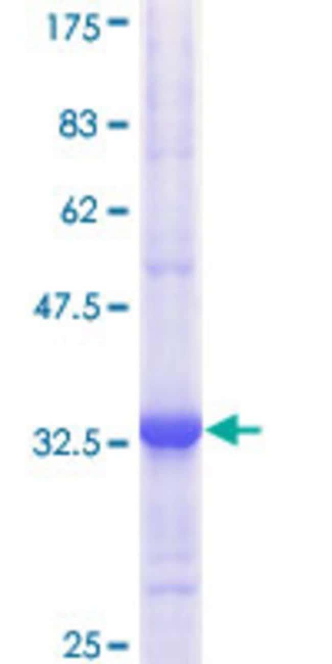 Abnova Human HK2 Partial ORF (AAH21116, 818 a.a. - 917 a.a.) Recombinant