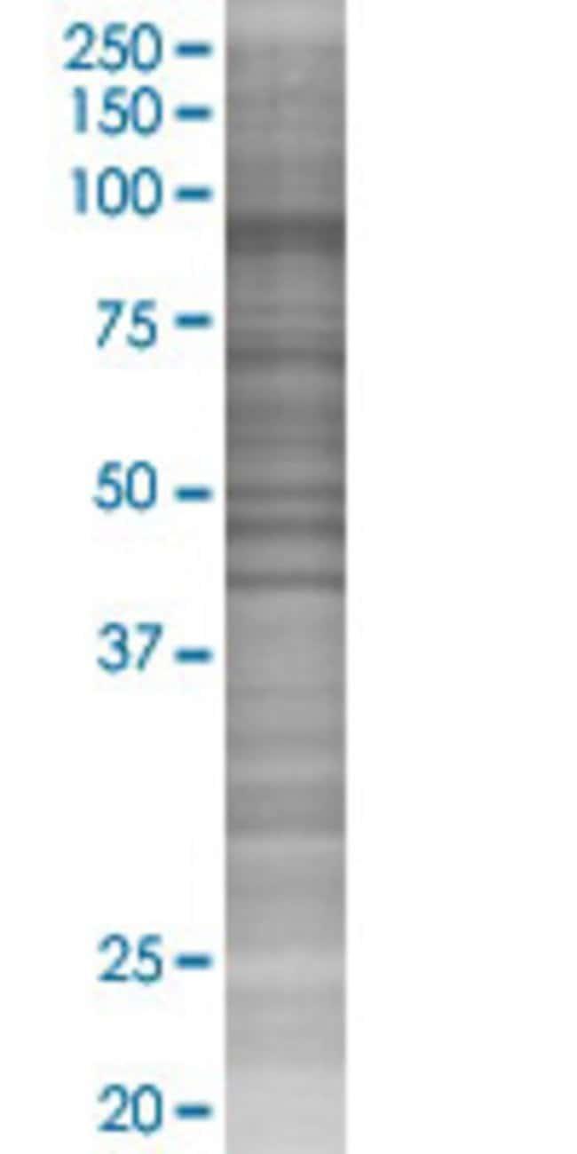 Abnova HK3 293T Cell Transient Overexpression Lysate (Denatured) (T02)