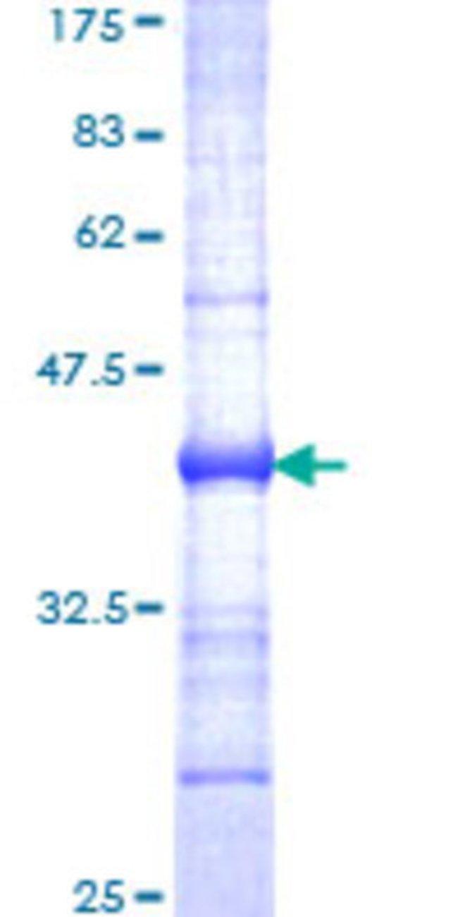 Abnova Human HLA-DMB Partial ORF (NP_002109, 22 a.a. - 129 a.a.) Recombinant
