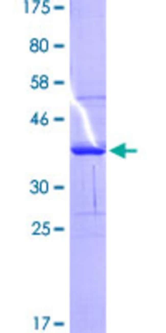 Abnova™Human HLA-DQB1 Partial ORF (AAH12106.1, 129 a.a. - 217 a.a.) Recombinant Protein with GST-tag at N-terminal 25μg Abnova™Human HLA-DQB1 Partial ORF (AAH12106.1, 129 a.a. - 217 a.a.) Recombinant Protein with GST-tag at N-terminal