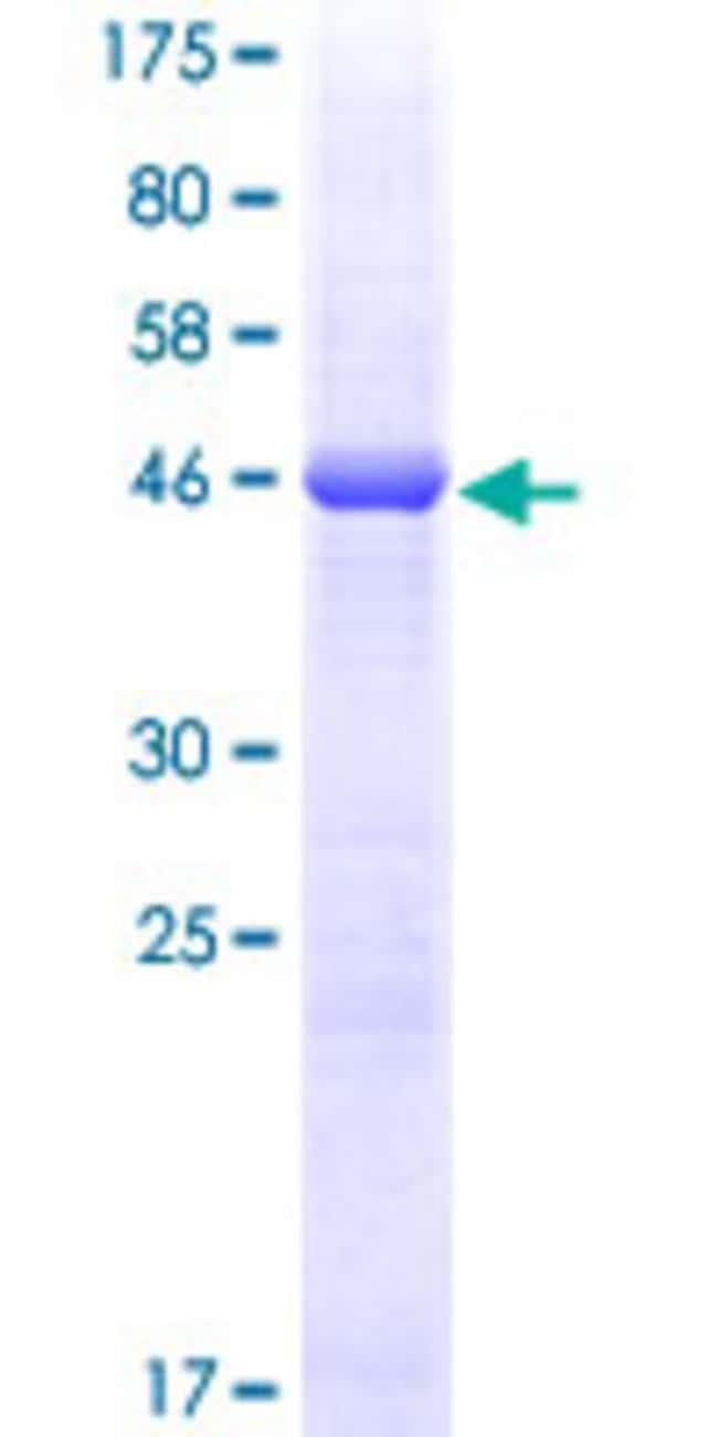Abnova Human HLA-DQB2 Full-length ORF (AAH31995, 1 a.a. - 231 a.a.) Recombinant