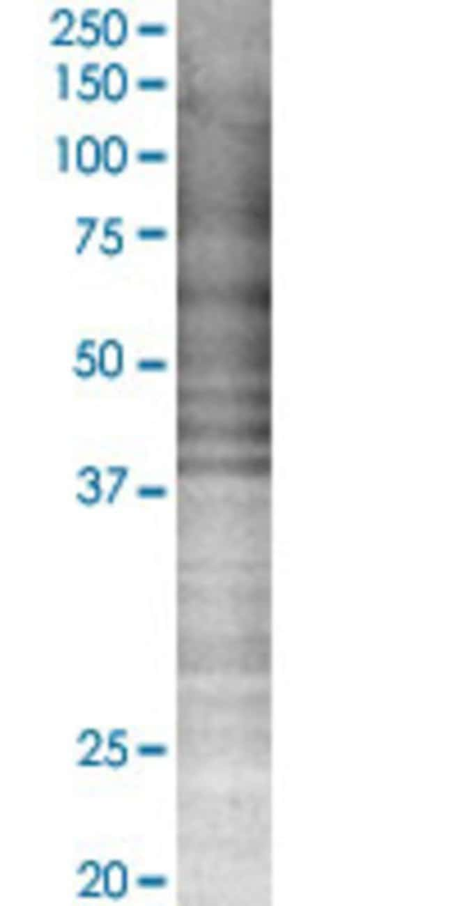 Abnova HLA-DRA 293T Cell Transient Overexpression Lysate (Denatured) 100µL:Life