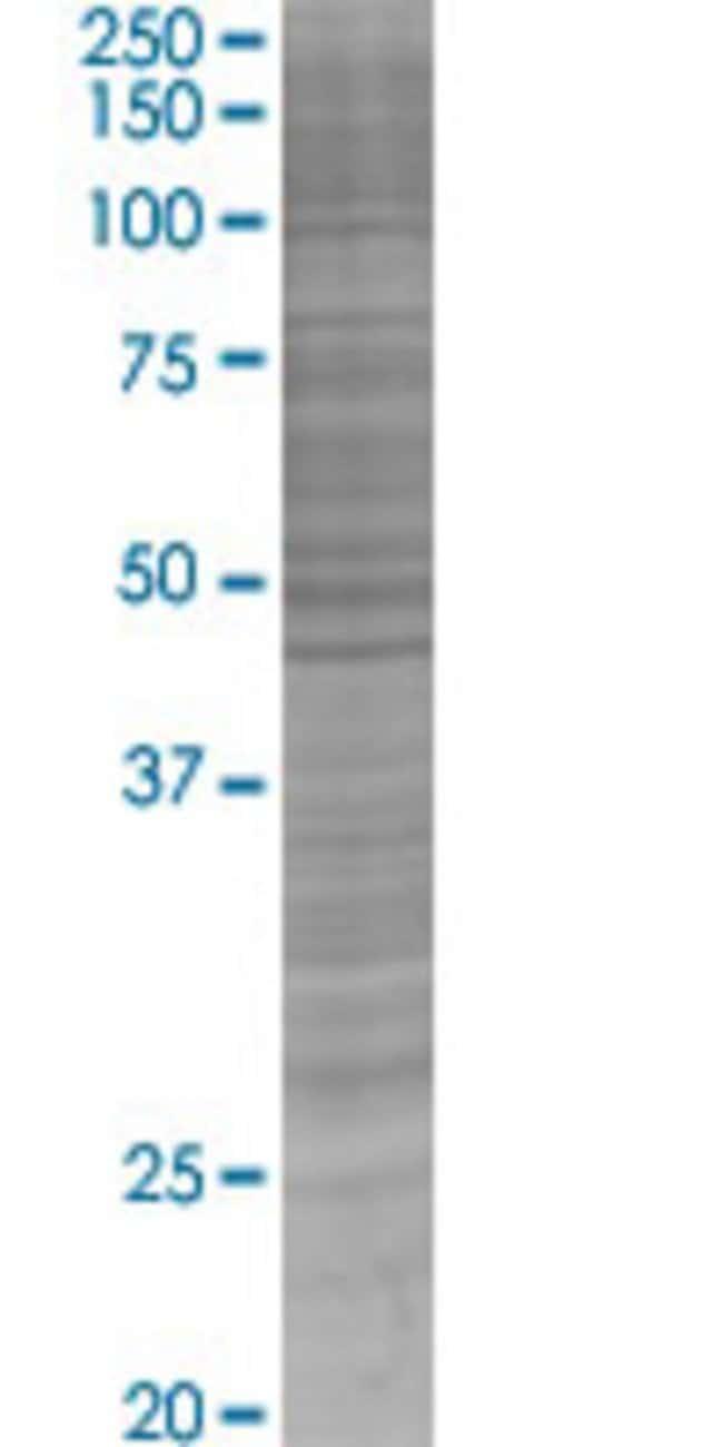 Abnova HLA-DRB1 293T Cell Transient Overexpression Lysate (Denatured) (T04)
