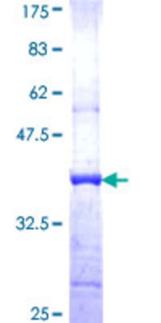 Abnova™Human HLCS Partial ORF (NP_000402, 627 a.a. - 724 a.a.) Recombinant Protein with GST-tag at N-terminal 10μg Abnova™Human HLCS Partial ORF (NP_000402, 627 a.a. - 724 a.a.) Recombinant Protein with GST-tag at N-terminal
