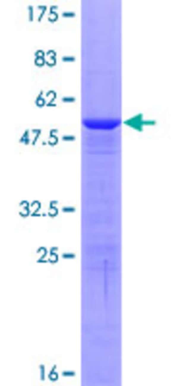 Abnova Human HMGB3 Full-length ORF (NP_005333.2, 1 a.a. - 200 a.a.) Recombinant