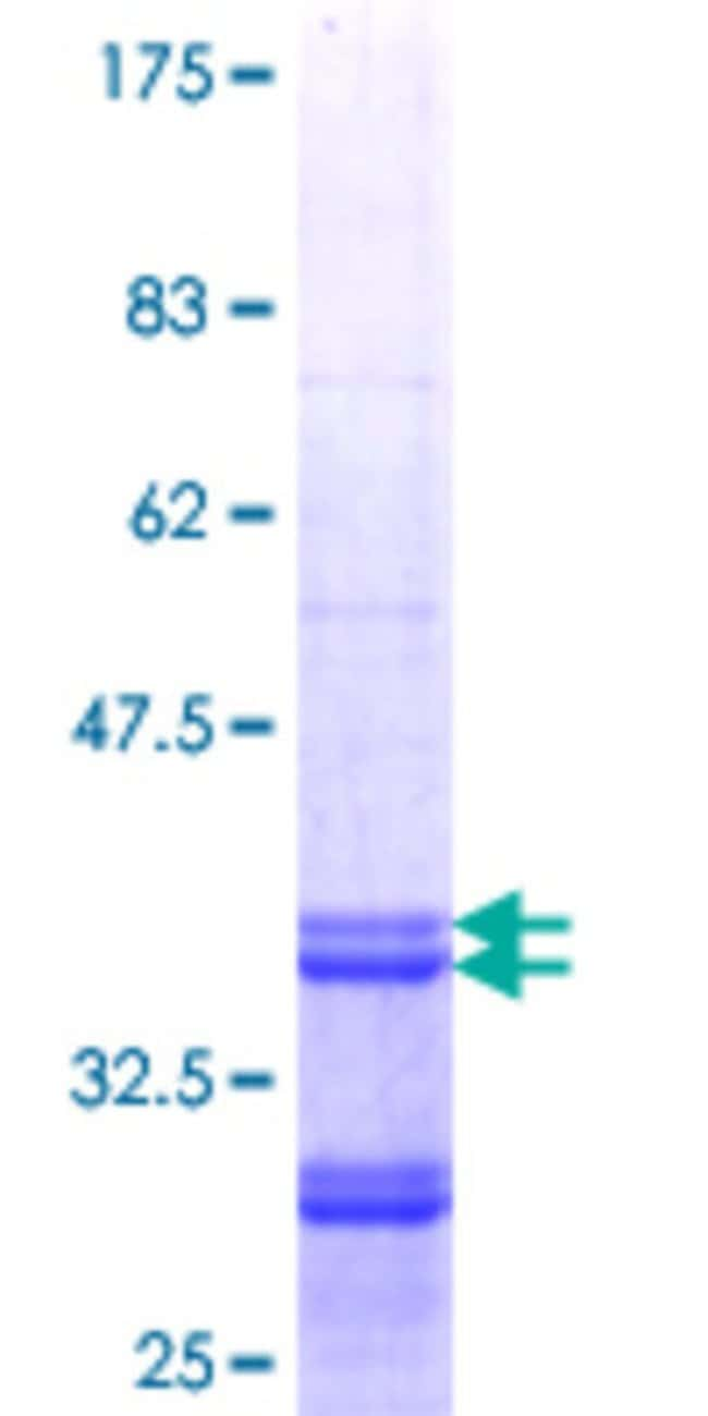 Abnova™Human HMGCS2 Partial ORF (NP_005509.1, 424 a.a. - 508 a.a.) Recombinant Protein with GST-tag at N-terminal 10μg Abnova™Human HMGCS2 Partial ORF (NP_005509.1, 424 a.a. - 508 a.a.) Recombinant Protein with GST-tag at N-terminal