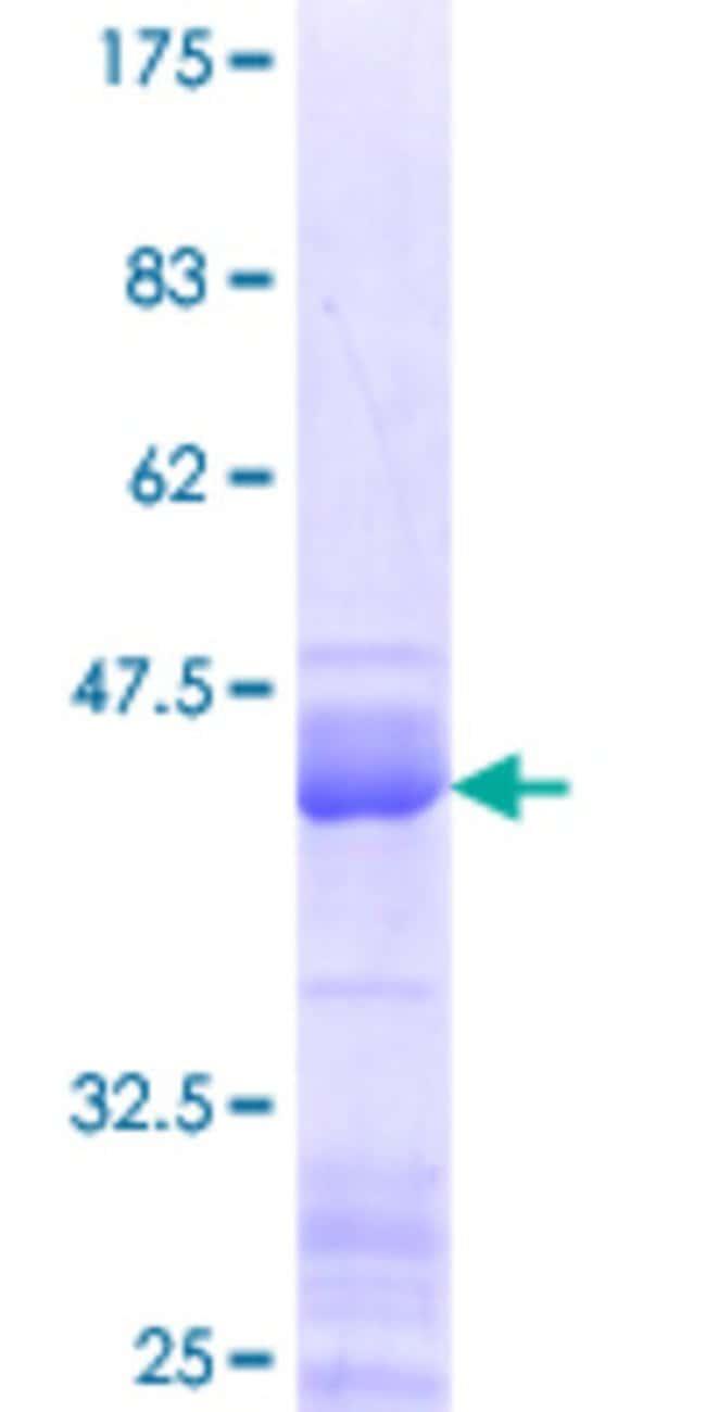 Abnova Human HMGA1 Partial ORF (NP_665906.1, 1 a.a. - 107 a.a.) Recombinant