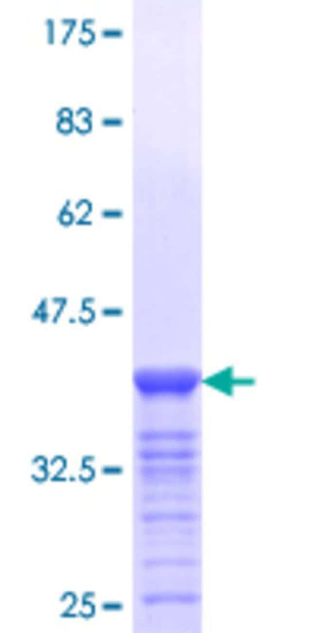 Abnova™ Human FOXA3 Partial ORF (NP_004488.2, 266 a.a. - 350 a.a.) Recombinant Protein with GST-tag at N-terminal 25μg Abnova™ Human FOXA3 Partial ORF (NP_004488.2, 266 a.a. - 350 a.a.) Recombinant Protein with GST-tag at N-terminal