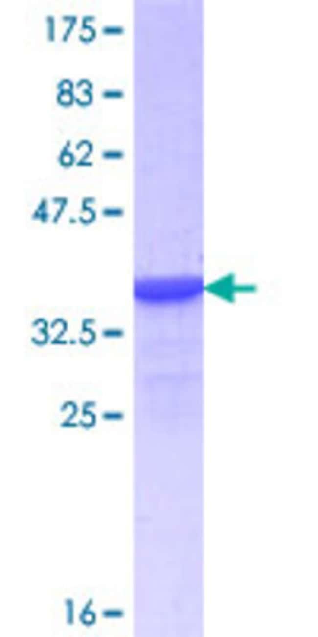 Abnova Human HNF4G Partial ORF (NP_004124.3, 310 a.a. - 407 a.a.) Recombinant