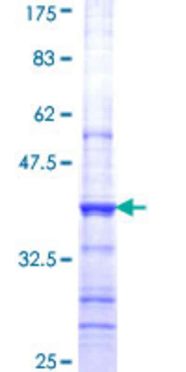 Abnova Human HNMT Partial ORF (NP_008826, 184 a.a. - 292 a.a.) Recombinant
