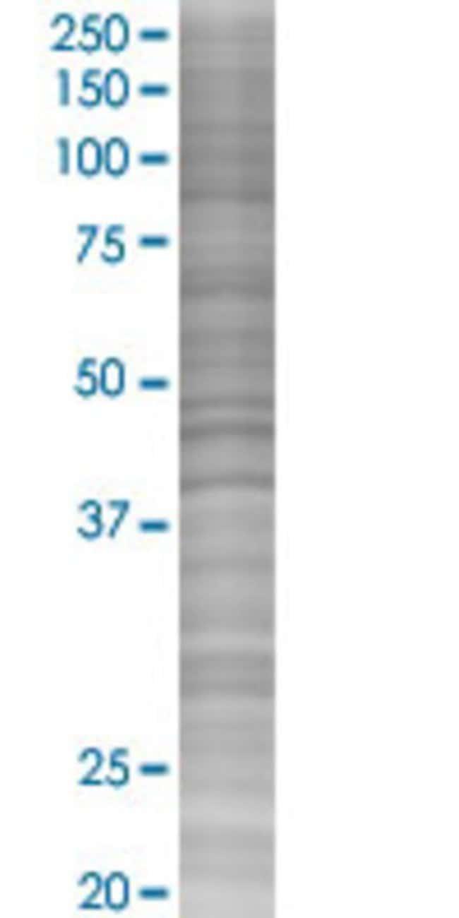 Abnova HNRPA1 293T Cell Transient Overexpression Lysate (Denatured) 100µL:Life