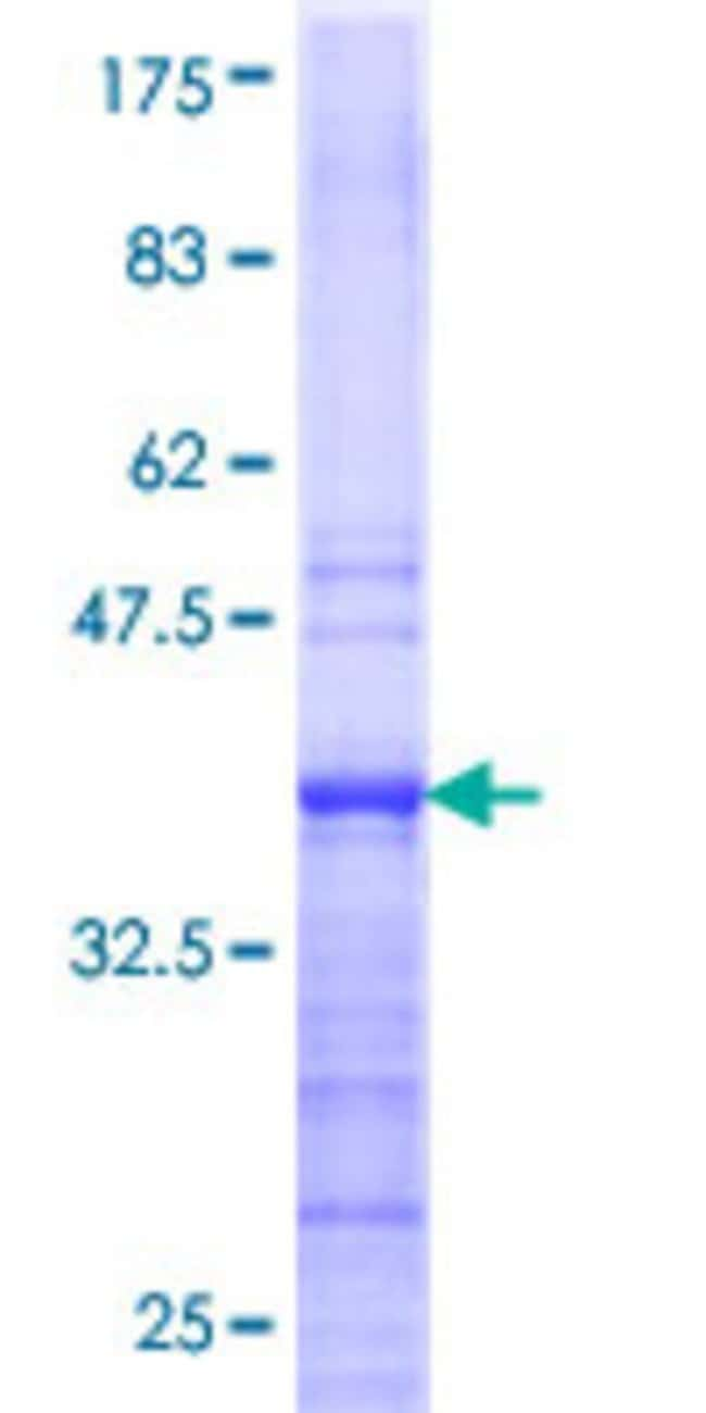 Abnova Human HNRPAB Partial ORF (NP_004490, 186 a.a. - 285 a.a.) Recombinant