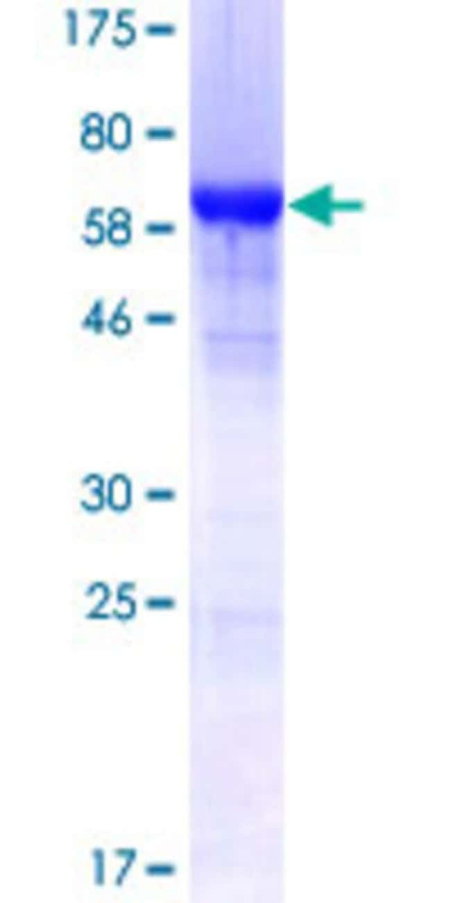 Abnova™Human HNRPF Full-length ORF (NP_004957.1, 1 a.a. - 415 a.a.) Recombinant Protein with GST-tag at N-terminal 25μg Abnova™Human HNRPF Full-length ORF (NP_004957.1, 1 a.a. - 415 a.a.) Recombinant Protein with GST-tag at N-terminal