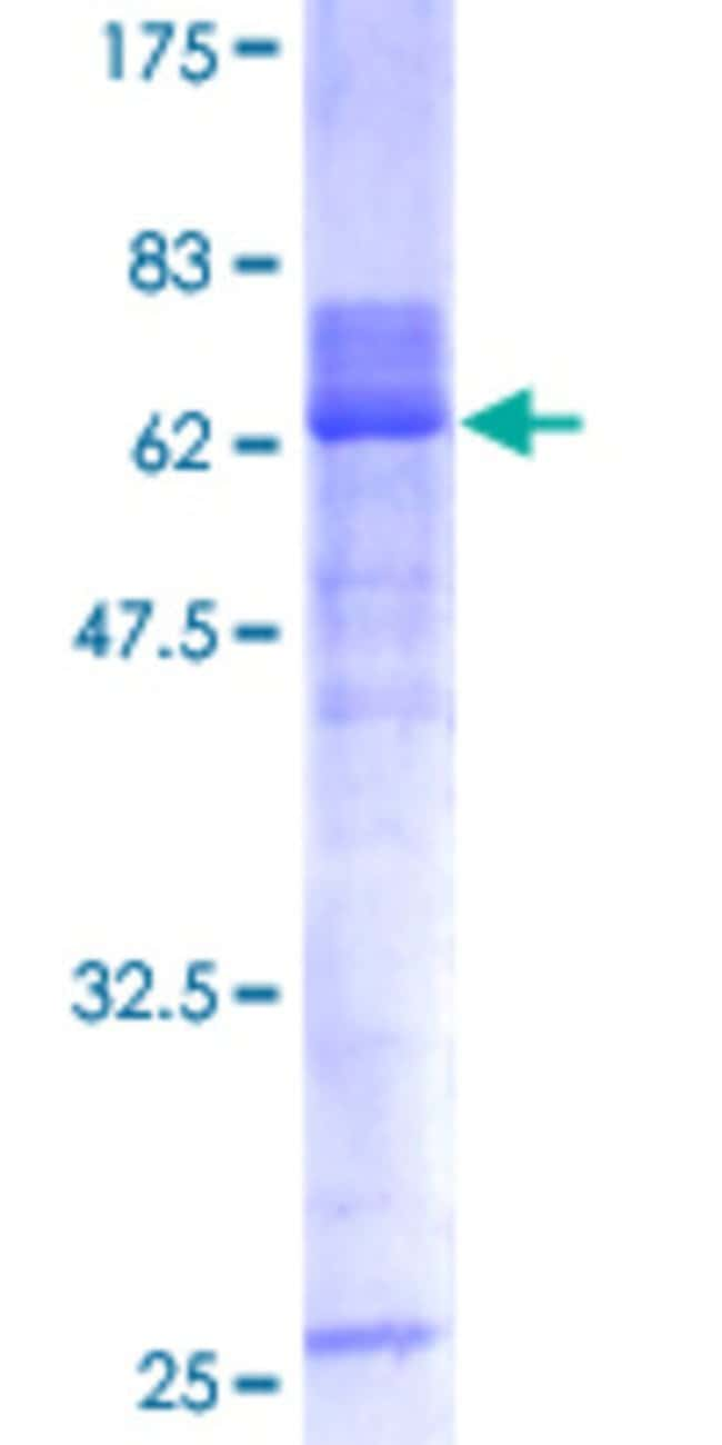 Abnova Human HOXA1 Full-length ORF (AAH32547, 1 a.a. - 335 a.a.) Recombinant
