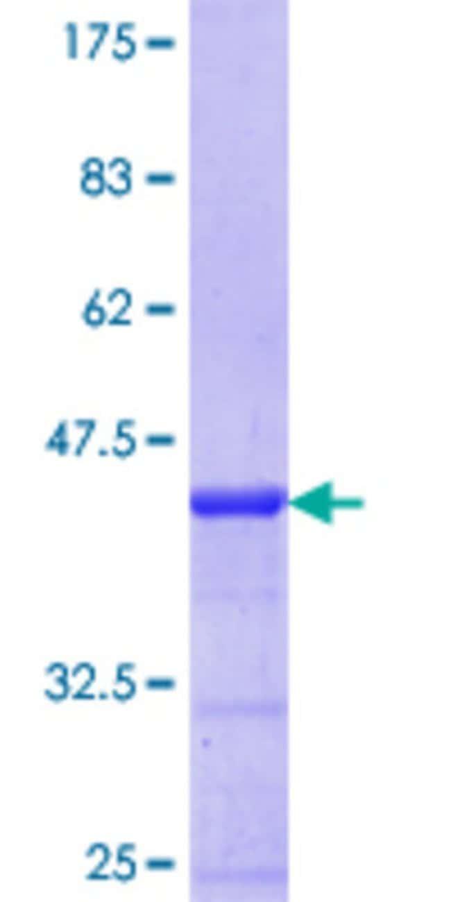 Abnova Human HOXA1 Partial ORF (NP_005513.1, 11 a.a. - 119 a.a.) Recombinant