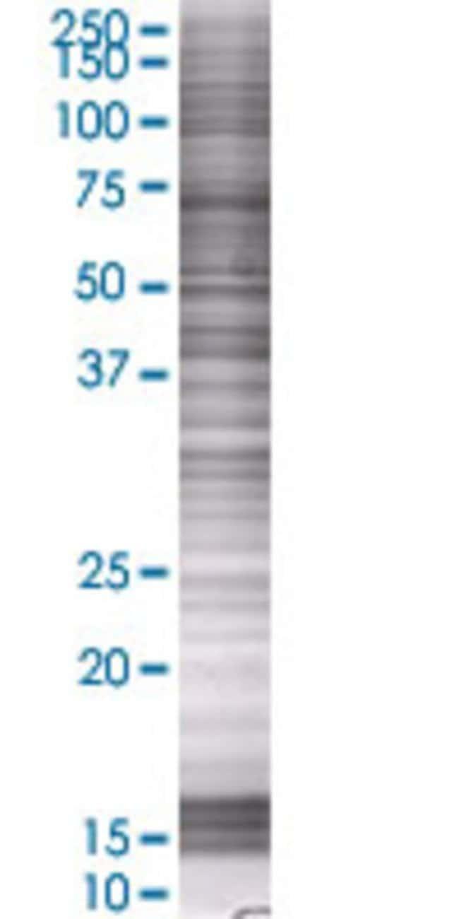 Abnova HOXA1 293T Cell Transient Overexpression Lysate (Denatured) 100µL:Life