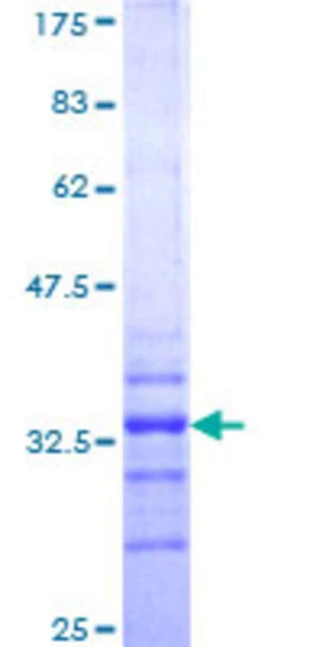 Abnova Human HOXA7 Partial ORF (NP_008827, 58 a.a. - 112 a.a.) Recombinant