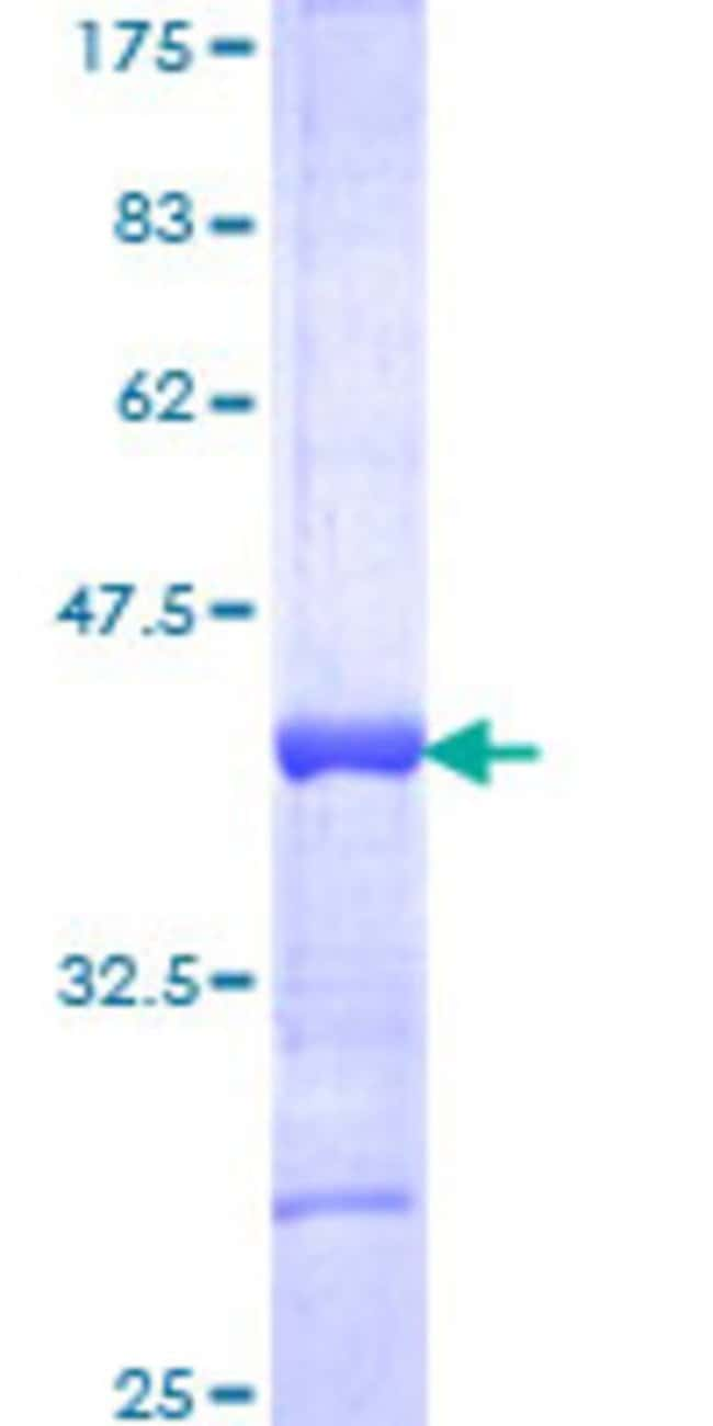 Abnova Human HOXA13 Partial ORF (NP_000513, 208 a.a. - 306 a.a.) Recombinant