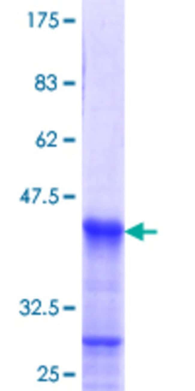 Abnova™Human HOXB1 Partial ORF (NP_002135.2, 101 a.a. - 210 a.a.) Recombinant Protein with GST-tag at N-terminal 25μg Abnova™Human HOXB1 Partial ORF (NP_002135.2, 101 a.a. - 210 a.a.) Recombinant Protein with GST-tag at N-terminal