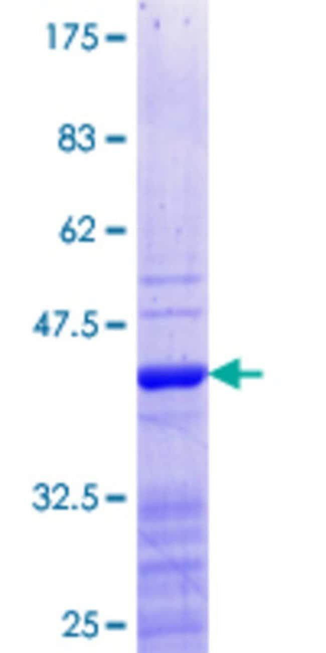 Abnova Human HOXB5 Partial ORF (NP_002138.1, 170 a.a. - 267 a.a.) Recombinant