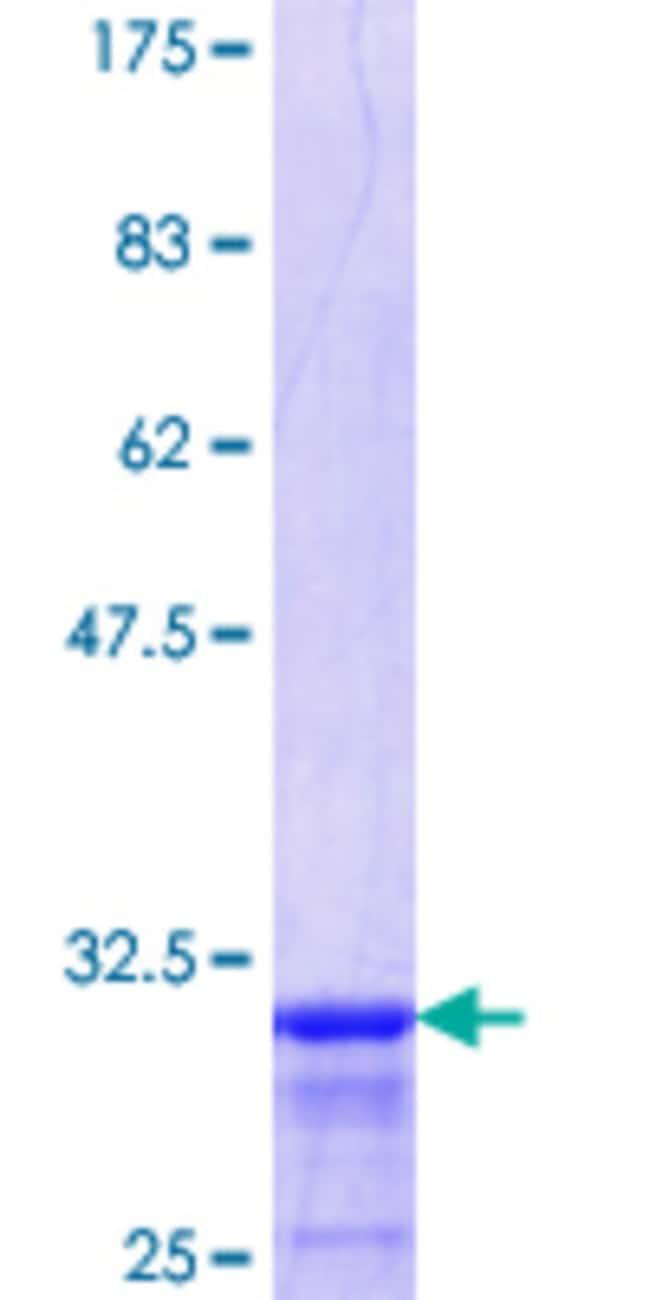 Abnova Human HOXB6 Partial ORF (NP_724779.1, 1 a.a. - 57 a.a.) Recombinant