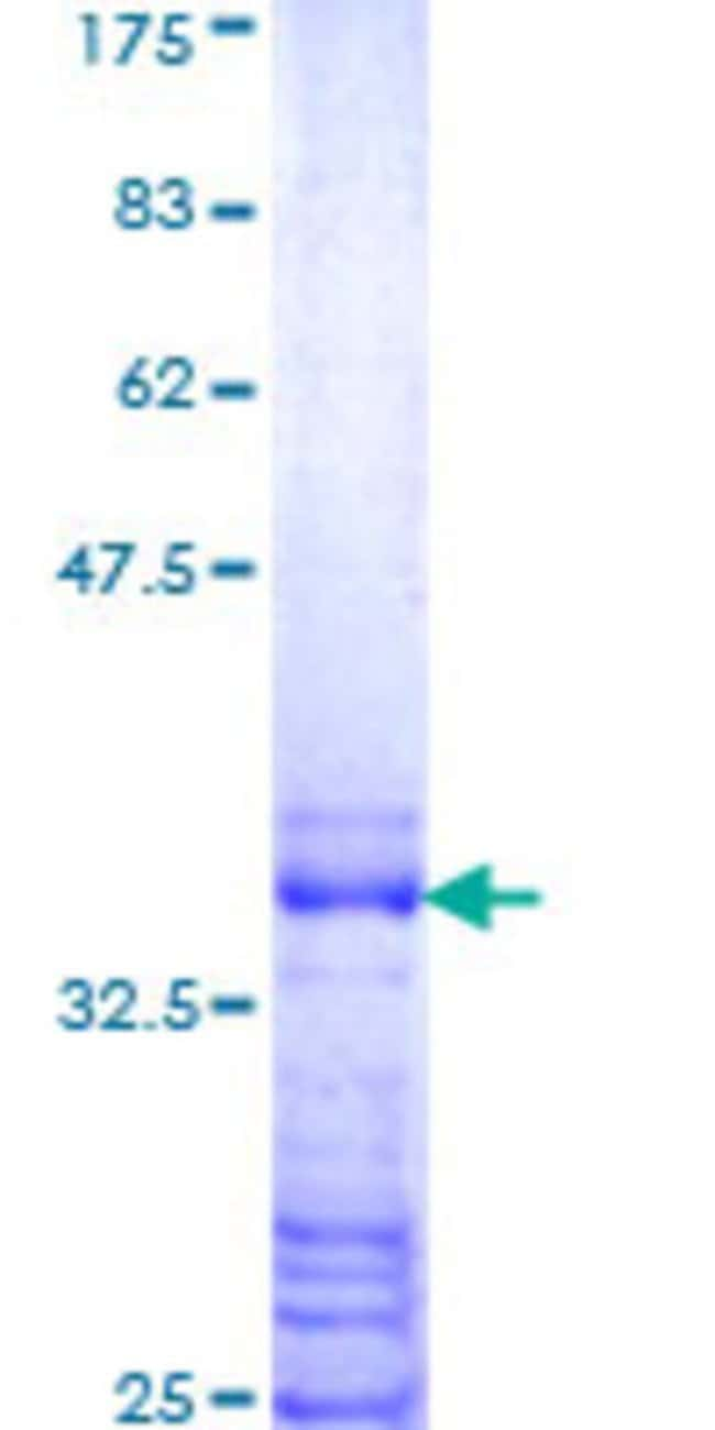 Abnova™Human HOXB8 Partial ORF (NP_076921, 16 a.a. - 114 a.a.) Recombinant Protein with GST-tag at N-terminal 10μg Abnova™Human HOXB8 Partial ORF (NP_076921, 16 a.a. - 114 a.a.) Recombinant Protein with GST-tag at N-terminal