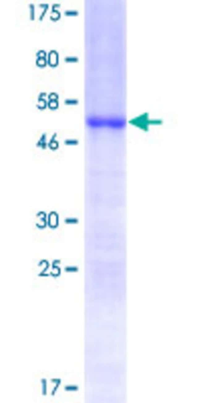 Abnova™Human HOXC6 Full-length ORF (NP_004494.1, 1 a.a. - 235 a.a.) Recombinant Protein with GST-tag at N-terminal 10μg Abnova™Human HOXC6 Full-length ORF (NP_004494.1, 1 a.a. - 235 a.a.) Recombinant Protein with GST-tag at N-terminal