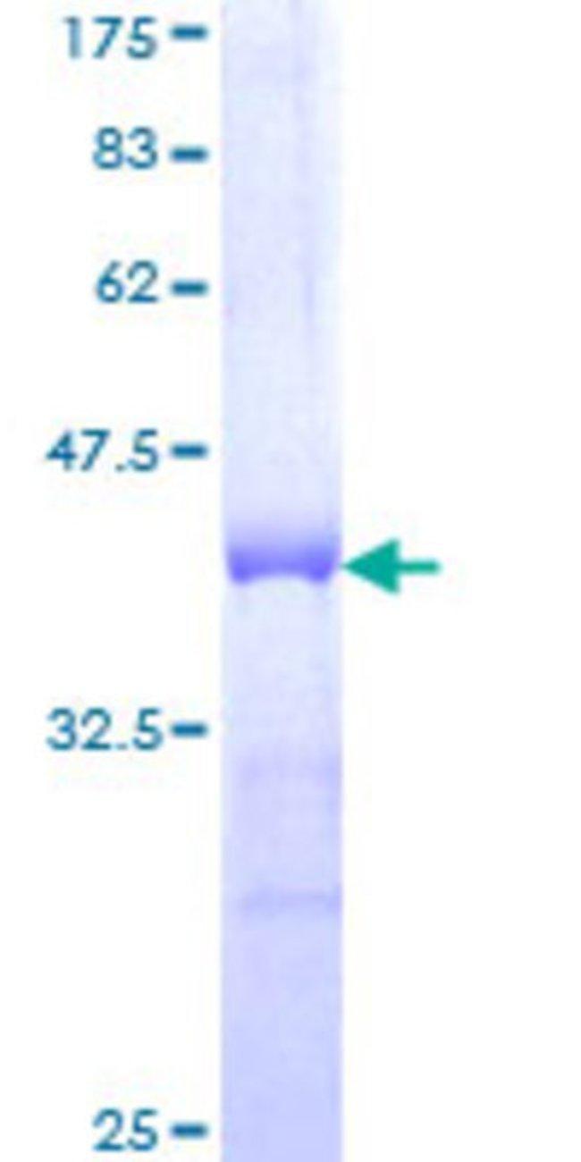 Abnova Human HOXC12 Partial ORF (NP_776272, 1 a.a. - 100 a.a.) Recombinant