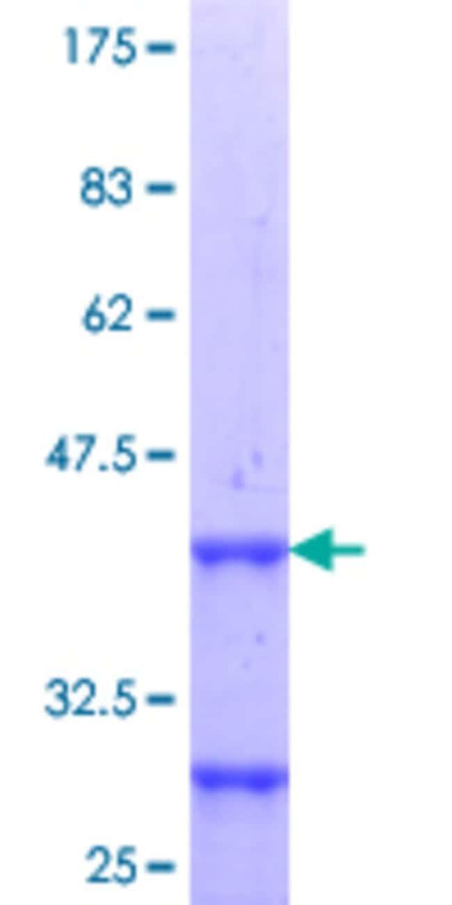 Abnova Human HOXD10 Partial ORF (NP_002139.2, 44 a.a. - 143 a.a.) Recombinant