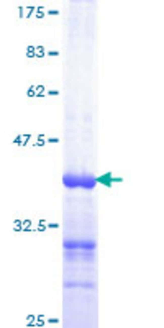 Abnova™Human HRAS Partial ORF (AAH21566, 80 a.a. - 179 a.a.) Recombinant Protein with GST-tag at N-terminal 10μg Abnova™Human HRAS Partial ORF (AAH21566, 80 a.a. - 179 a.a.) Recombinant Protein with GST-tag at N-terminal