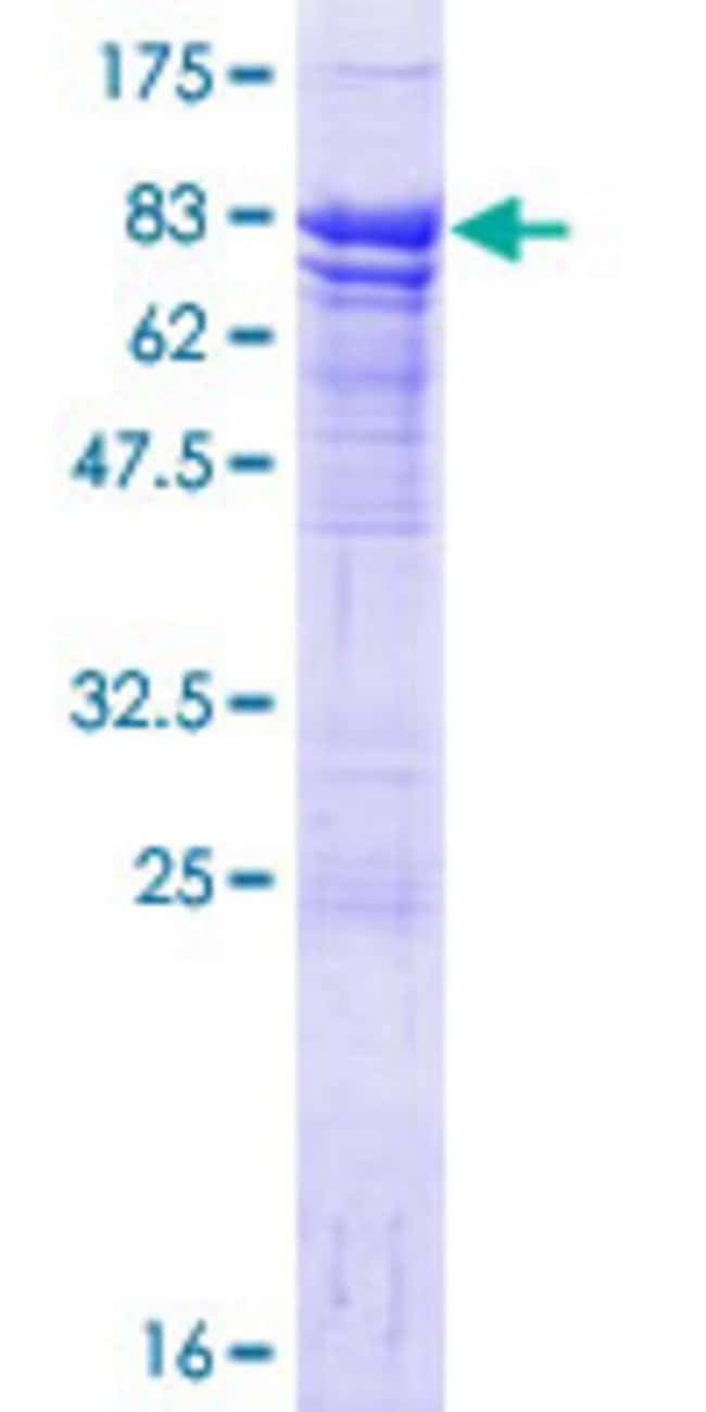 Abnova Human HRB Full-length ORF (NP_004495.2, 1 a.a. - 562 a.a.) Recombinant