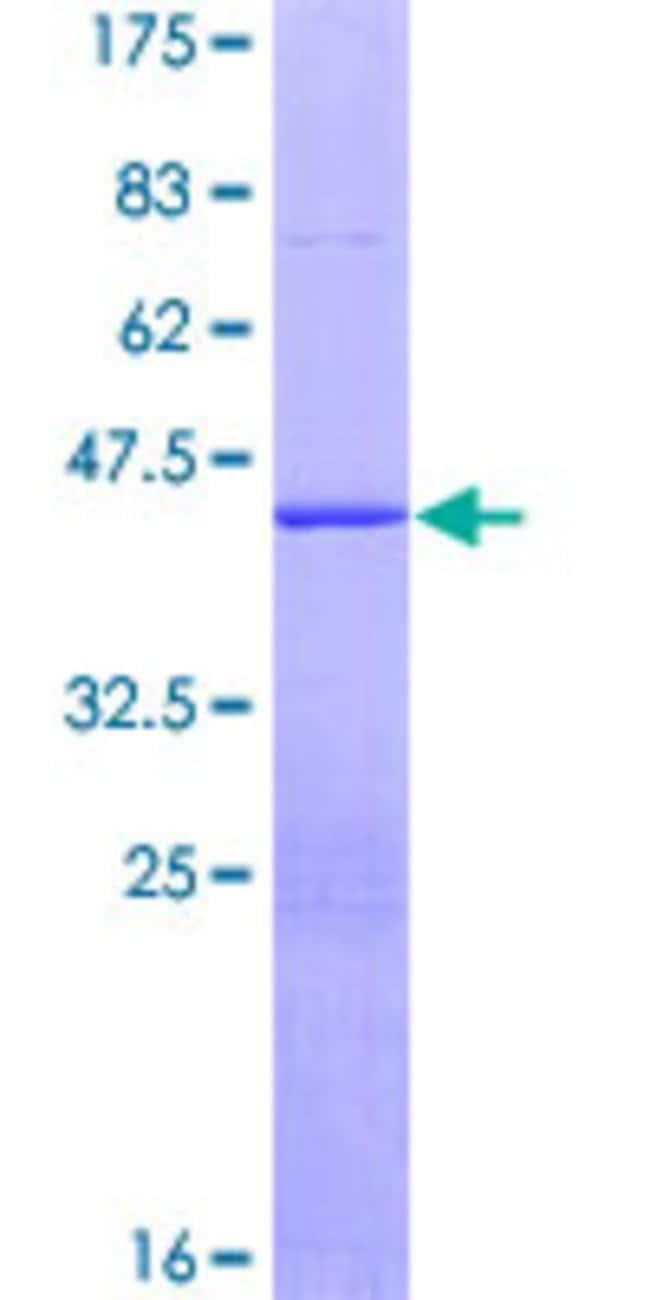 Abnova Human HRBL Full-length ORF (ENSP00000262935, 1 a.a. - 155 a.a.)
