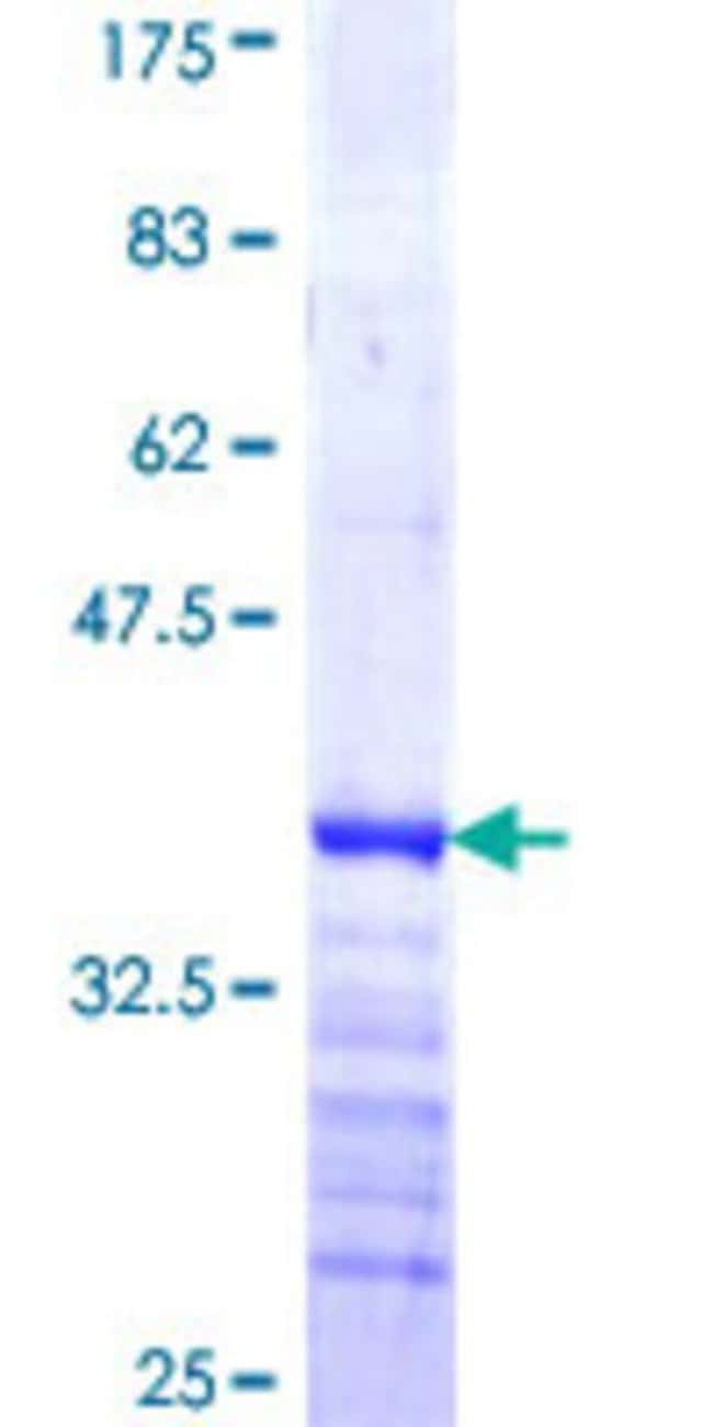 Abnova™ Human HRBL Partial ORF (NP_006067, 131 a.a. - 228 a.a.) Recombinant Protein with GST-tag at N-terminal 10μg Abnova™ Human HRBL Partial ORF (NP_006067, 131 a.a. - 228 a.a.) Recombinant Protein with GST-tag at N-terminal