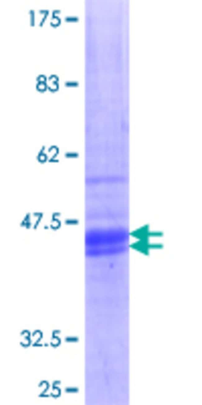 Abnova Human HRH1 Partial ORF (NP_000852.1, 312 a.a. - 414 a.a.) Recombinant
