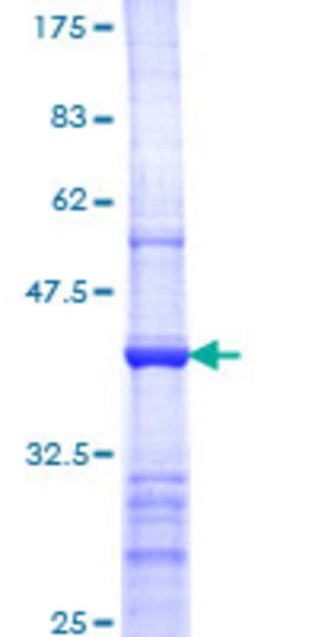 Abnova™Human HRMT1L2 Partial ORF (NP_001527, 260 a.a. - 361 a.a.) Recombinant Protein with GST-tag at N-terminal 10μg Abnova™Human HRMT1L2 Partial ORF (NP_001527, 260 a.a. - 361 a.a.) Recombinant Protein with GST-tag at N-terminal