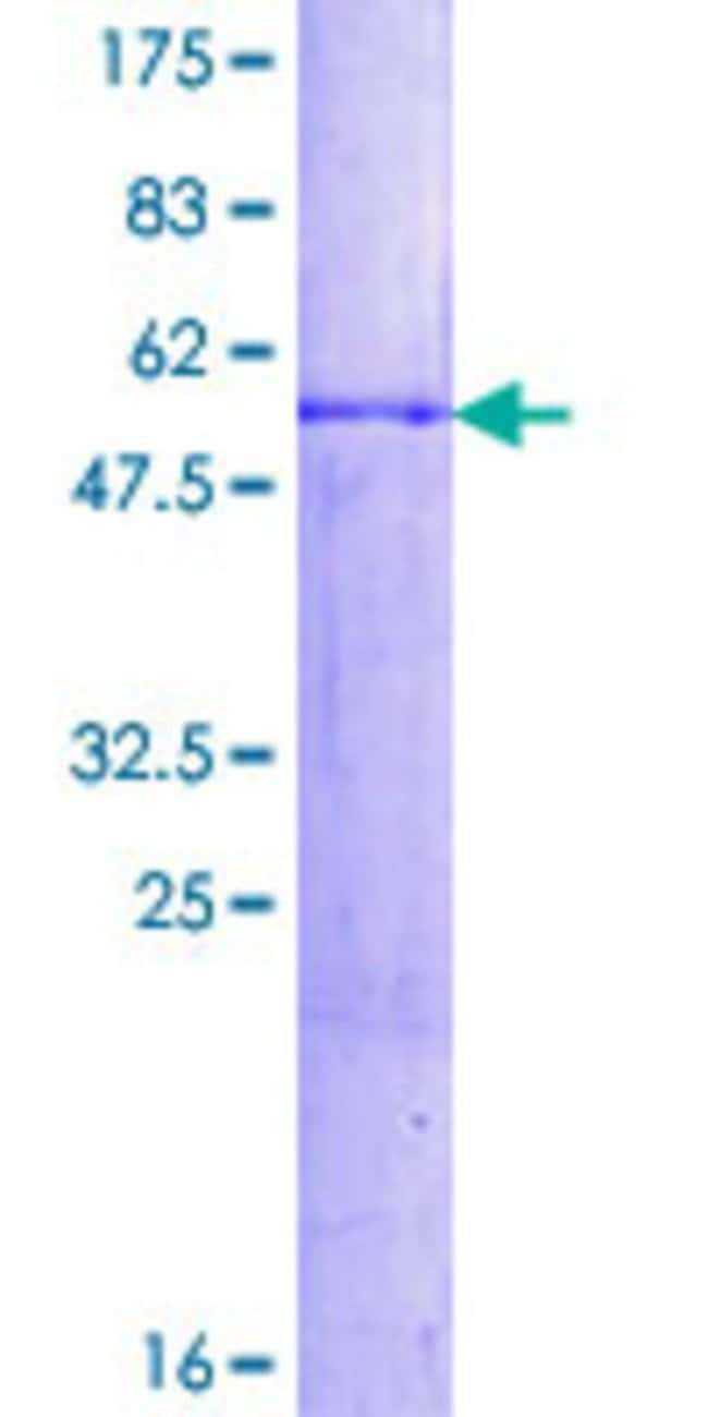 Abnova Human HES1 Full-length ORF (AAH39152.1, 1 a.a. - 277 a.a.) Recombinant