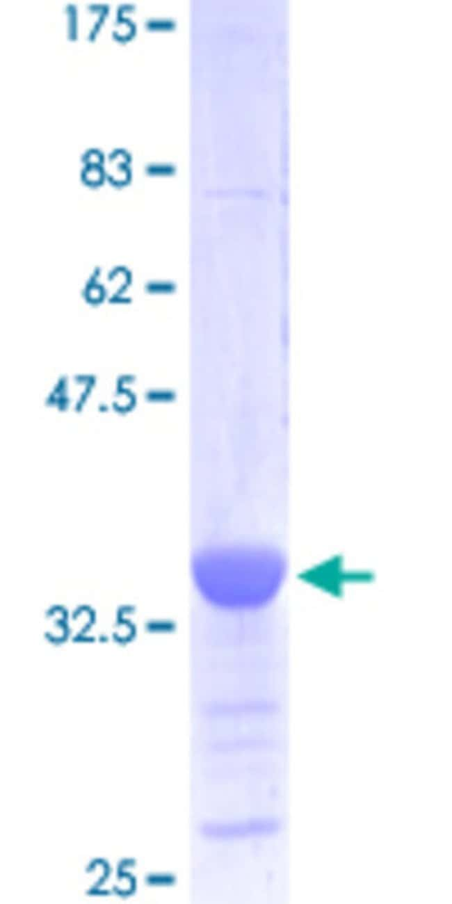 Abnova Human HES1 Partial ORF (NP_005515.1, 201 a.a. - 280 a.a.) Recombinant