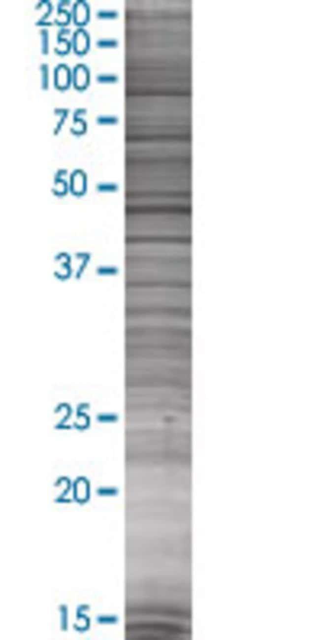 Abnova HSD11B1 293T Cell Transient Overexpression Lysate (Denatured) 100µL:Life