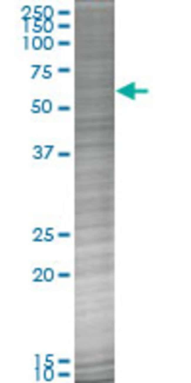 Abnova HSD11B2 293T Cell Transient Overexpression Lysate (Denatured) (T02)