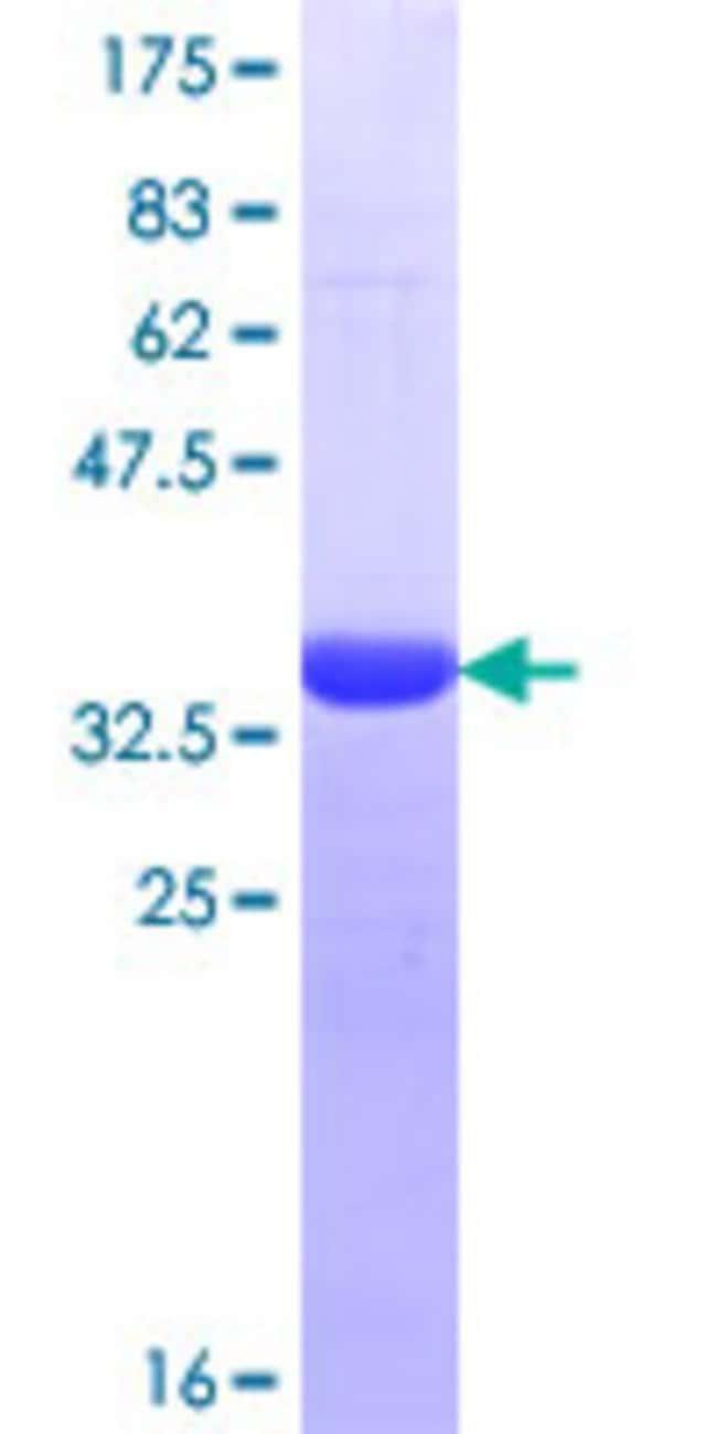 Abnova Human HSPA6 Partial ORF (NP_002146.2, 544 a.a. - 643 a.a.) Recombinant
