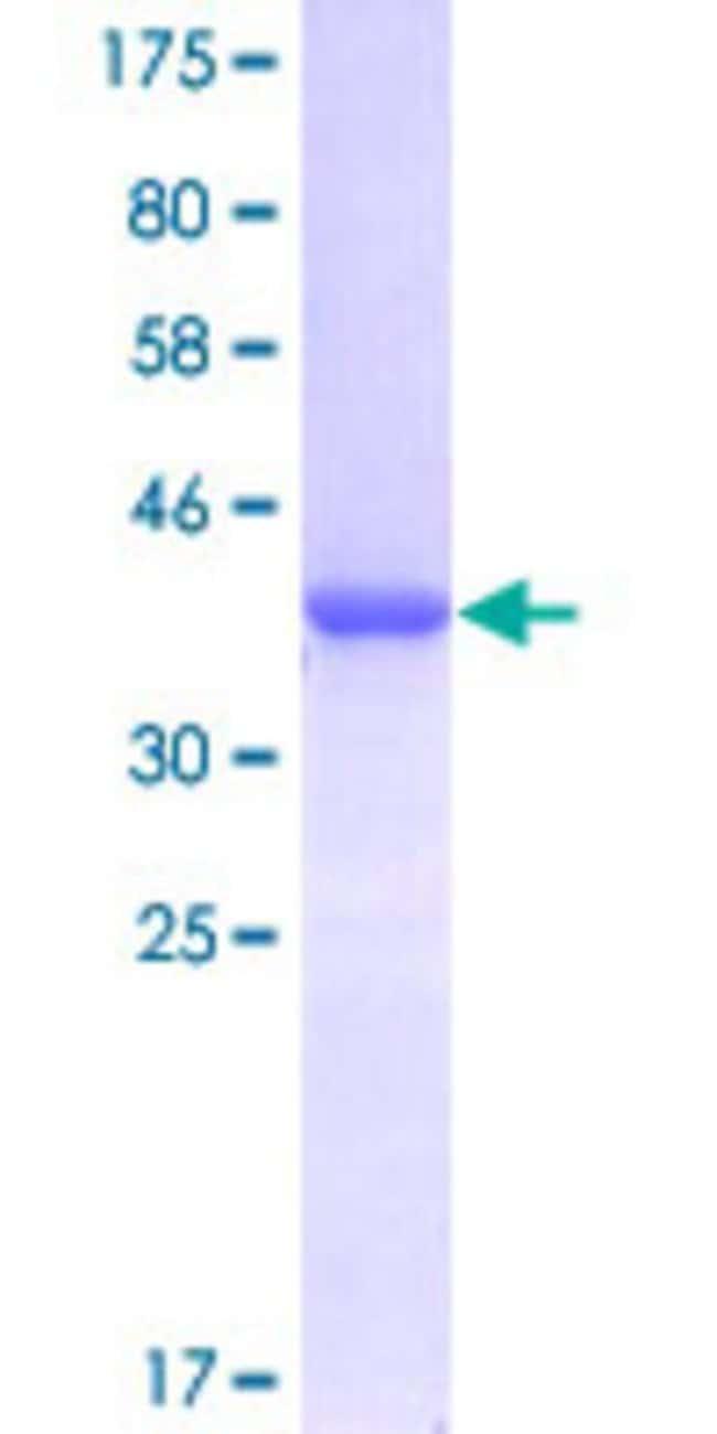 Abnova Human HSPB1 Partial ORF (NP_001531, 96 a.a. - 205 a.a.) Recombinant