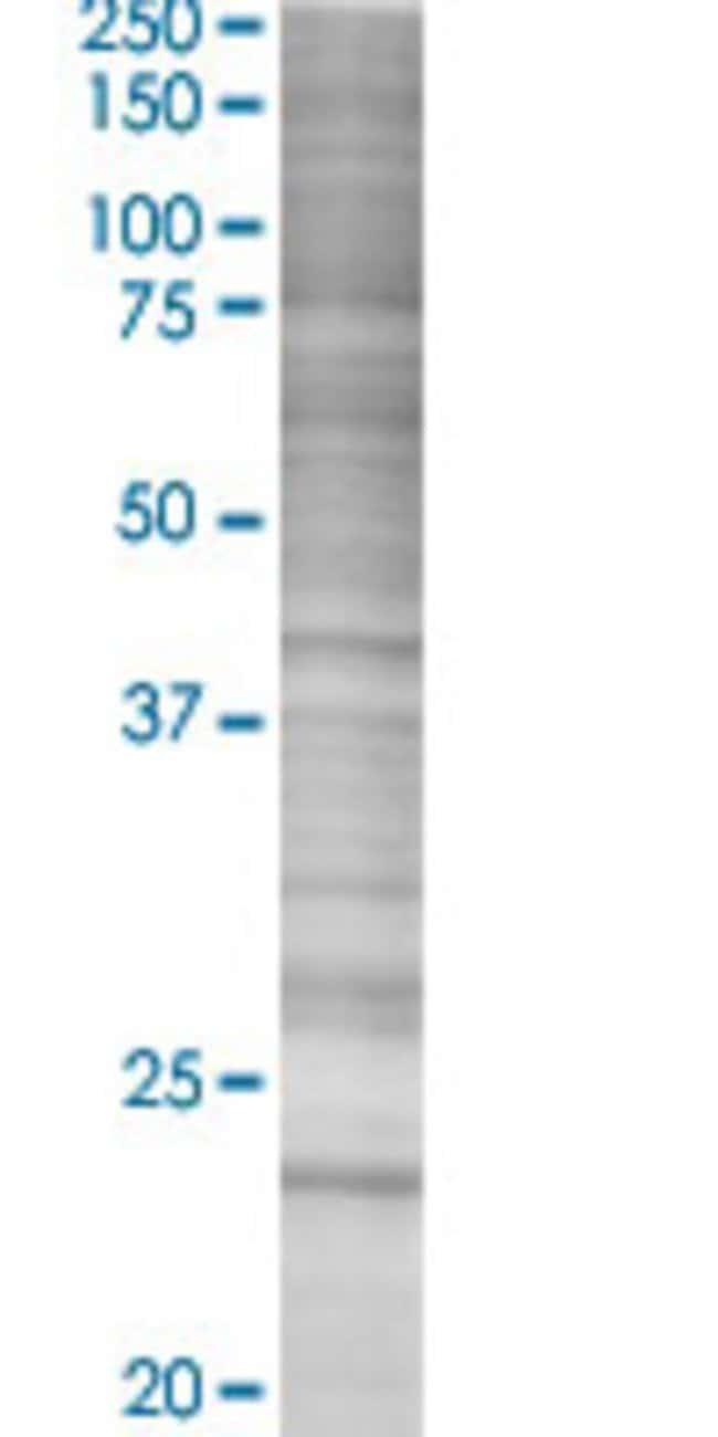 Abnova HSPB1 293T Cell Transient Overexpression Lysate (Denatured) 100µL:Life