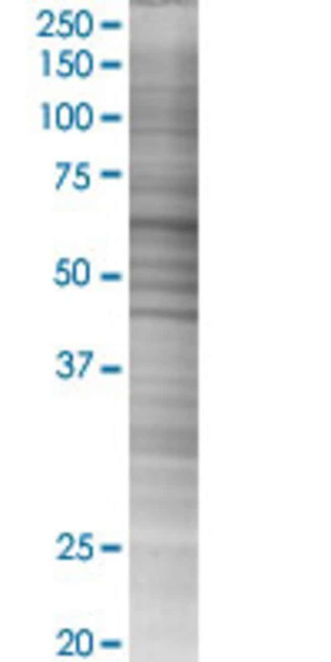 Abnova HSPD1 293T Cell Transient Overexpression Lysate (Denatured) (T02)