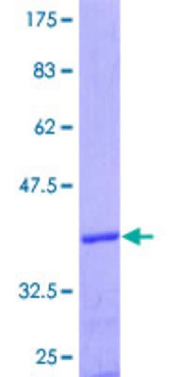 Abnova Human HTR7 Partial ORF (AAH47526.1, 1 a.a. - 90 a.a.) Recombinant