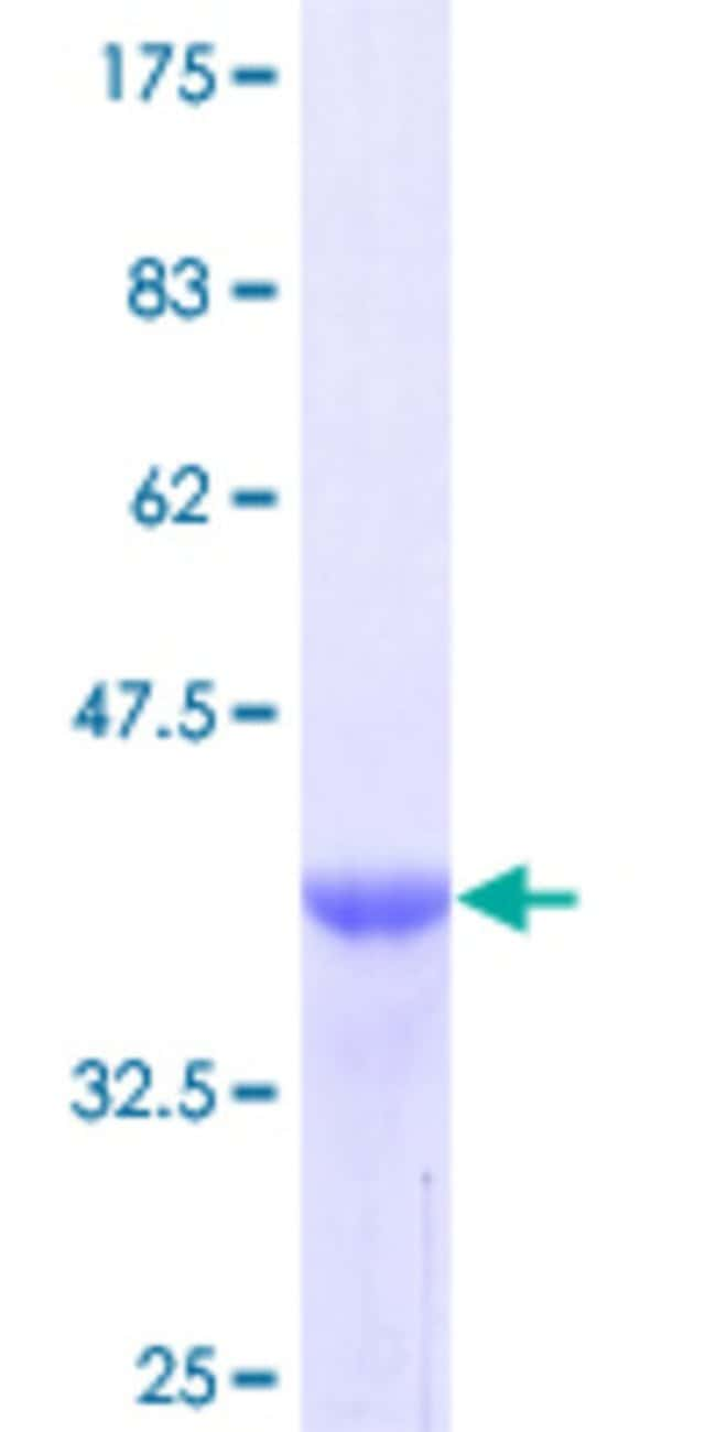 Abnova™ Human TNC Partial ORF (NP_002151, 181 a.a. - 290 a.a.) Recombinant Protein with GST-tag at N-terminal 25μg Abnova™ Human TNC Partial ORF (NP_002151, 181 a.a. - 290 a.a.) Recombinant Protein with GST-tag at N-terminal