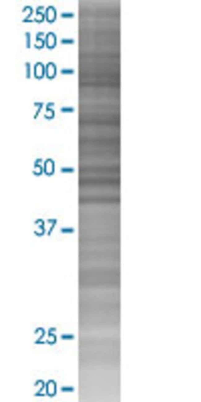 Abnova ICA1 293T Cell Transient Overexpression Lysate (Denatured) 100µL:Life